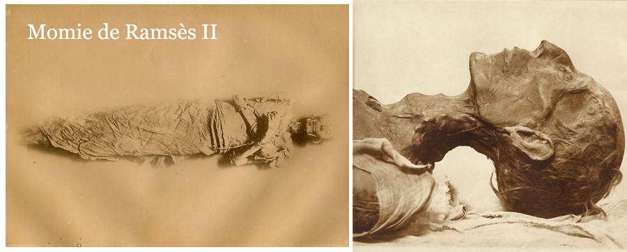Zangaki - La momie de Ramses II